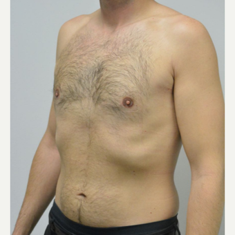 25-34 year old man treated with Male Breast Reduction after 3683760