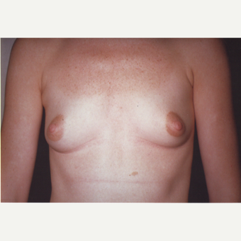 25-34 year old woman treated with Breast Augmentation before 3538675