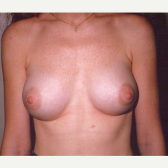 25-34 year old woman treated with Breast Augmentation after 3538675