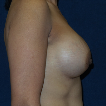 45-54 year old woman treated with Breast Augmentation after 3413172