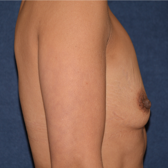 45-54 year old woman treated with Breast Augmentation before 3413172