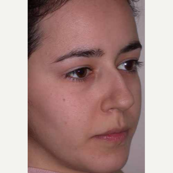 25-34 year old woman treated with Rhinoplasty before 3521209