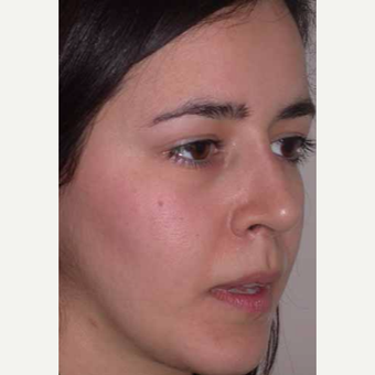 25-34 year old woman treated with Rhinoplasty after 3521209