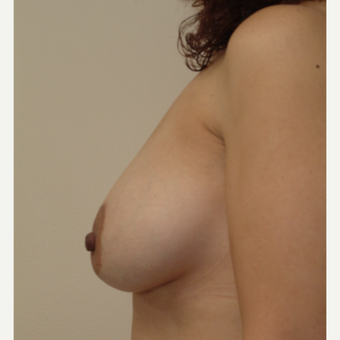 35-44 year old woman treated with Breast Implants after 3743027