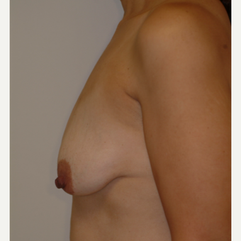 35-44 year old woman treated with Breast Implants before 3743027