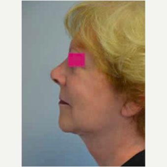 Neck Lift after 3058056