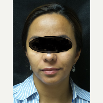 35-44 year old woman treated with Acne Treatment after 3528602