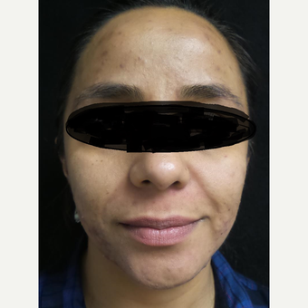 35-44 year old woman treated with Acne Treatment before 3528602