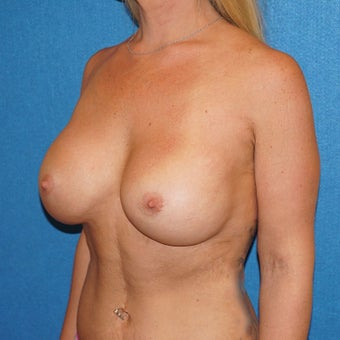 33 year old woman treated with Breast Augmentation 3576672