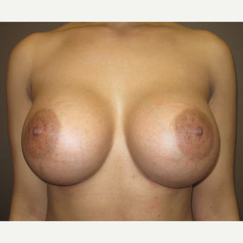 35-44 year old woman treated with Breast Augmentation after 3241934