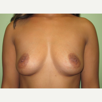 35-44 year old woman treated with Breast Augmentation before 3241934