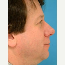 45-54 year old man treated with Rhinoplasty 1847753