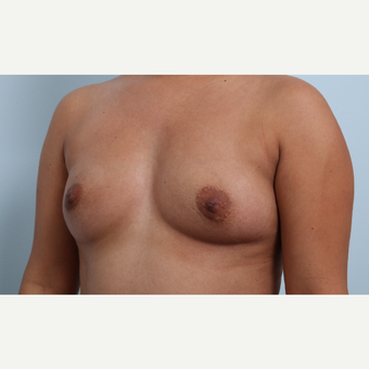 Breast Augmentation before 3345858