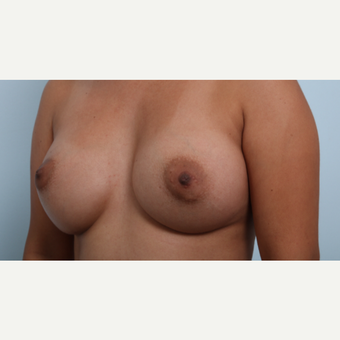 Breast Augmentation after 3345858