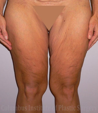 40 Year Old Woman has Thighplasty