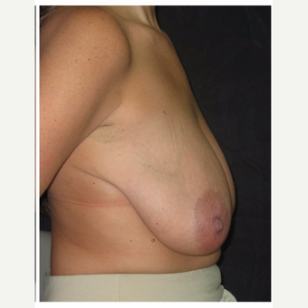 35-44 year old woman treated with Breast Lift before 3175401