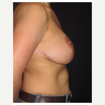 35-44 year old woman treated with Breast Lift after 3175401