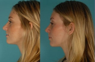 Revision Rhinoplasty before 857937