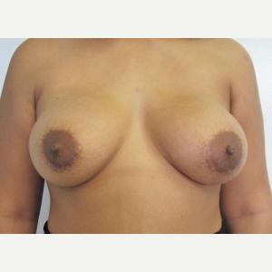Breast Implant Revision after 3168592