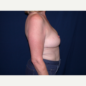 55-64 year old woman treated with Breast Lift after 3564622