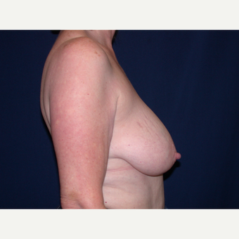 55-64 year old woman treated with Breast Lift before 3564622
