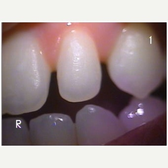 18-24 year old woman treated with Dental Bonding