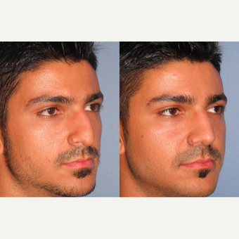 25-34 year old man treated with Rhinoplasty after 3521690