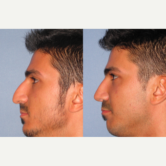 25-34 year old man treated with Rhinoplasty before 3521690