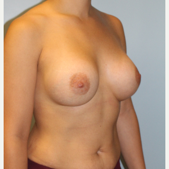 25-34 year old woman treated with Breast Augmentation after 3106250