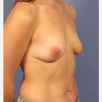25-34 year old woman treated with Breast Augmentation before 3106250