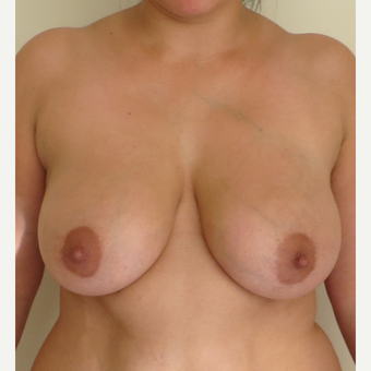 25-34 year old woman treated with Breast Reduction before 2930615