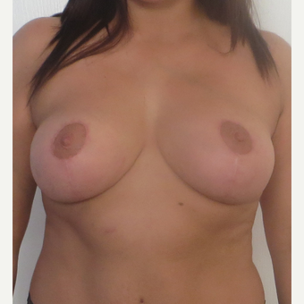 25-34 year old woman treated with Breast Reduction after 2930615