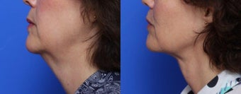 55-64 year old woman treated with Laser Liposuction of the neck