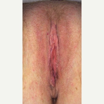 45-54 year old woman treated with Labiaplasty after 2427249