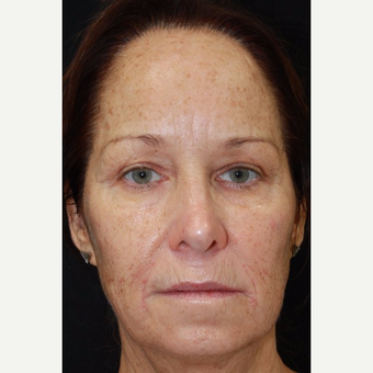 56 year old female treated with Voluma to the midface after 2994695