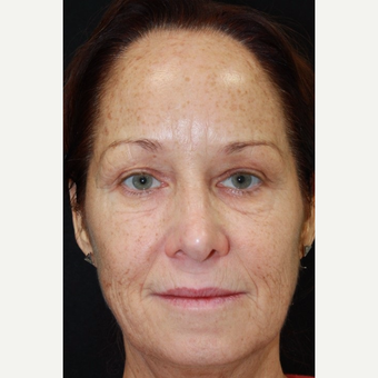 56 year old female treated with Voluma to the midface before 2994695