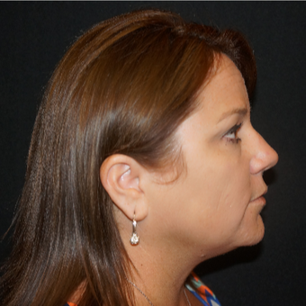 35-44 year old woman treated with Fotona 4D Non Surgical Face Lift after 3506223