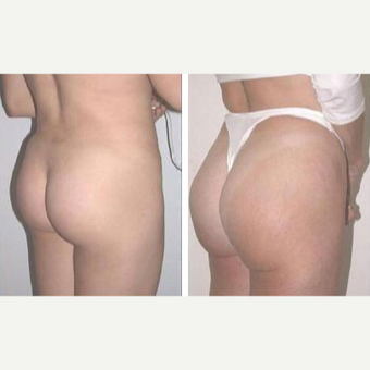 25-34 year old woman treated with Butt Implants before 3659491