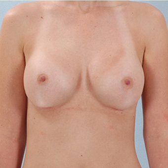 Breast Implants after 3033351