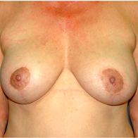 62 year old woman treated with Breast Lift with Implants after 3665923