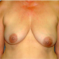 62 year old woman treated with Breast Lift with Implants before 3665923
