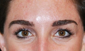Botox 2 after 949272