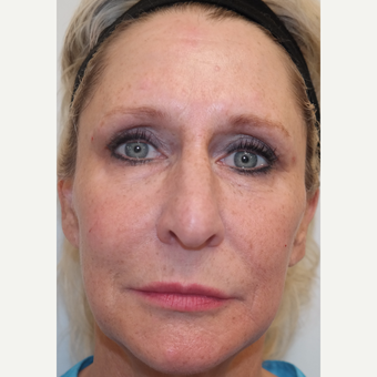 45-54 year old woman treated with Restylane in Tear Troughs, Cheek, Periocular, and PreJowl Sulcus after 3240738
