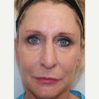 45-54 year old woman treated with Restylane in Tear Troughs, Cheek, Periocular, and PreJowl Sulcus before 3240738