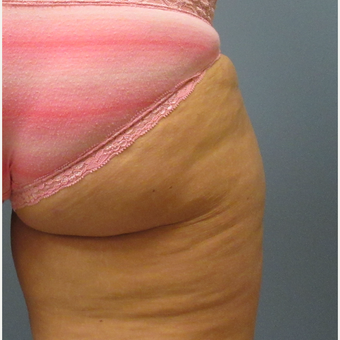 45-54 year old woman treated with CoolSculpting before 3763848