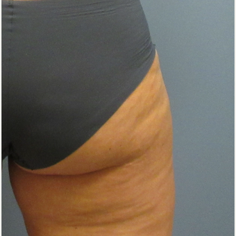 45-54 year old woman treated with CoolSculpting after 3763848