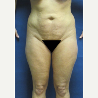 45-54 year old woman treated with Liposuction before 3743052