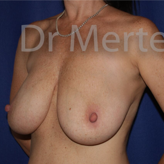 Breast Reduction before 3648480