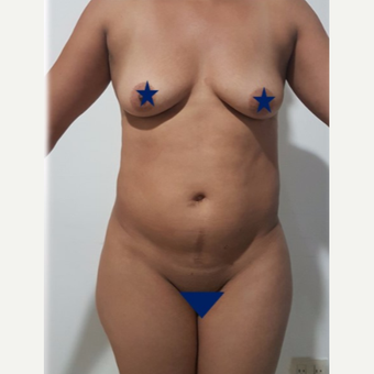 25-34 year old woman treated with Tummy Tuck before 3249260