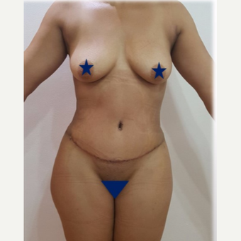 25-34 year old woman treated with Tummy Tuck after 3249260